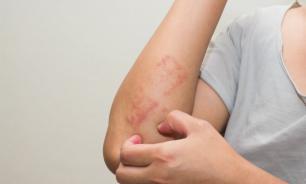 Новейшие и стандартные способы лечения псориаза
