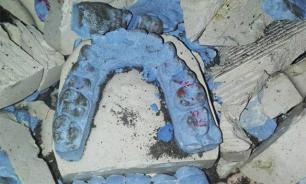 Зубы хрустят под ногами: дорожную яму в Воронеже засыпали челюстями
