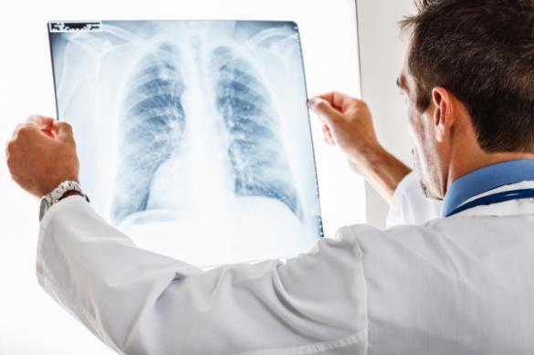 """К кому может """"прицепиться"""" туберкулез"""