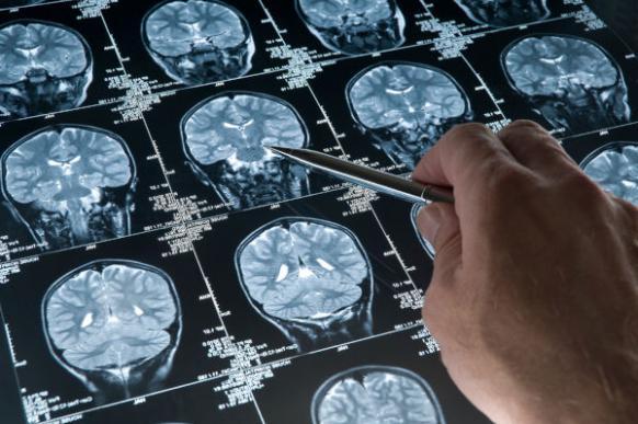 Лечение и прогноз туберозного склероза — задача не из легких