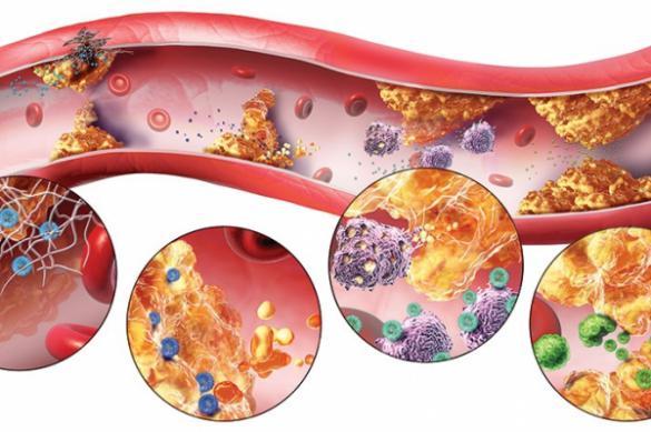 Почему повышается уровень триглицеридов в крови