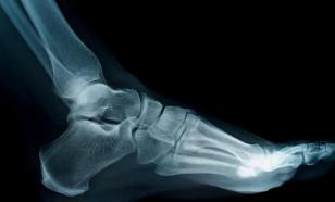 В Калининграде врачи дважды не заметили  у женщины перелом ноги