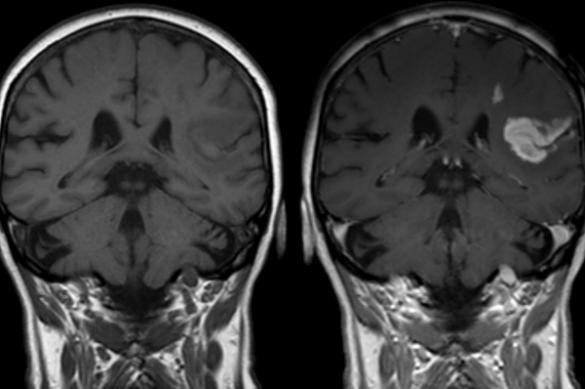 Демиелинизация головного мозга и ЦНС - часто вопрос жизни и смерти