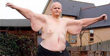 Британец ради любви сбросил лишние... 300 кг