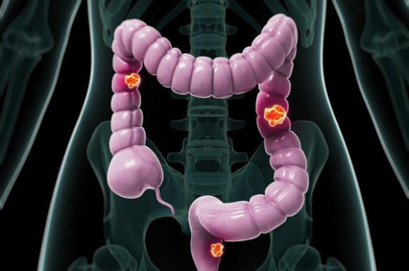 Исследователи рассказали, как организм предупреждает о раке кишечника