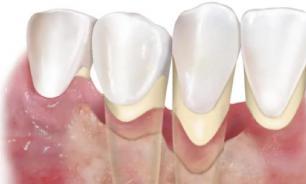 От чего у зубов шея болит