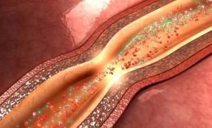 "Кардиолог Мартин Галле: ""Эластичные сосуды защитят от патологий"""