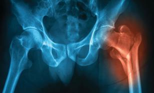 Хрупкие кости: как предотвратить остеопороз