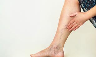 Проблемные ноги. Эксперименты читательницы