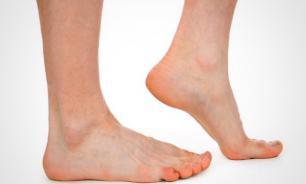 Как проявляется метатарзалгия, или болевое ощущение в переднем отделе стопы