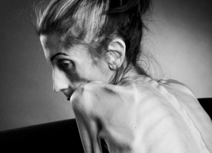 Смертельно опасные осложнения нервной анорексии
