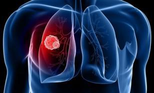 Рак легких: лечение в Израиле