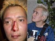Играл на гитаре, сломали нос...
