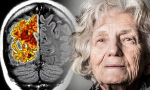 Симптомы болезни Альцгеймера на разных стадиях