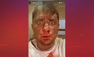 Прилучный ужаснул подписчиков снимком с окровавленным лицом