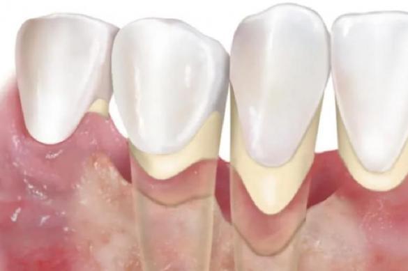 В потере зубов виноват не только кариес