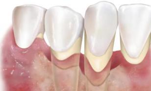 Почему выпадают здоровые зубы