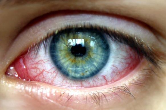 Аллергический конъюнктивит приходит вместе с пыльцой