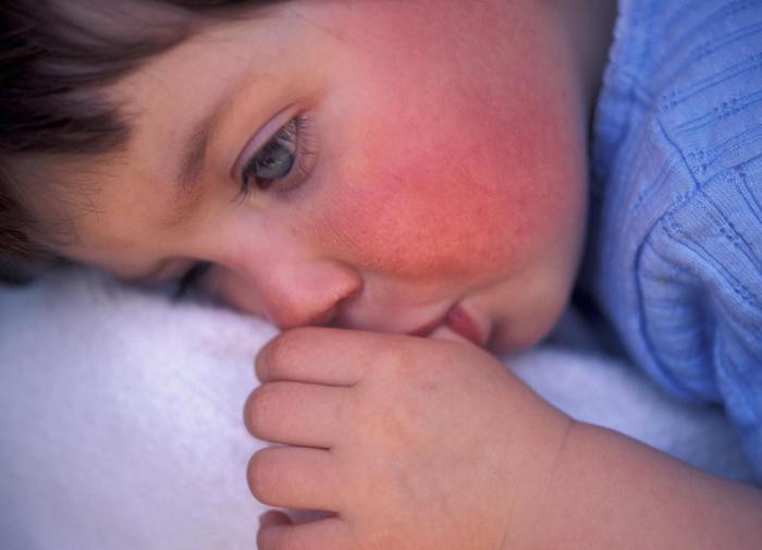 """Скарлатина всегда начинается остро, а симптомы """"написаны на лице"""""""