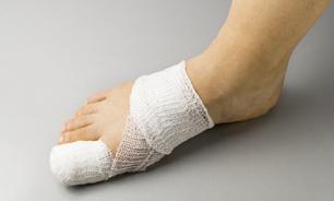 Вросший ноготь. Симптомы, диагностика, лечение