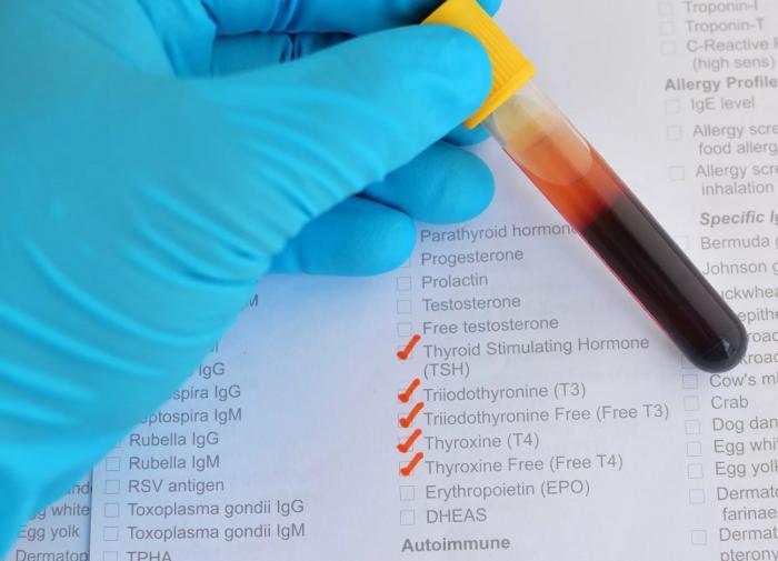 Анализы на гормоны: зачем сдавать?
