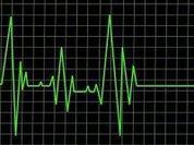 """Законопроект о """"презумпции согласия"""" на трансплантацию"""