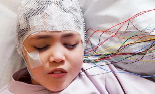 Эпилепсия: виды, причины, симптомы, диагностика и лечение