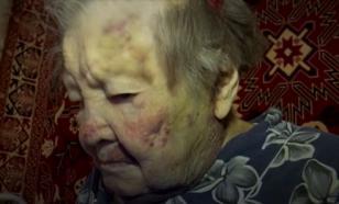 Пенсионерка из Екатеринбурга обвинила сиделку в избиении: как определить правду