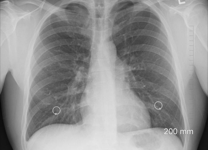 Фтизиатры предупреждают о возможной эпидемии туберкулёза