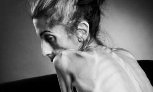 Страсти по худому телу: знаменитости, которые страдали от анорексии и булимии