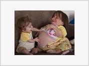 Самая маленькая в мире мама ждет прибавления