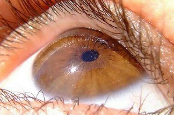 Дистрофией Фукса, влияющей на зрение, часто страдают люди старше 30 лет