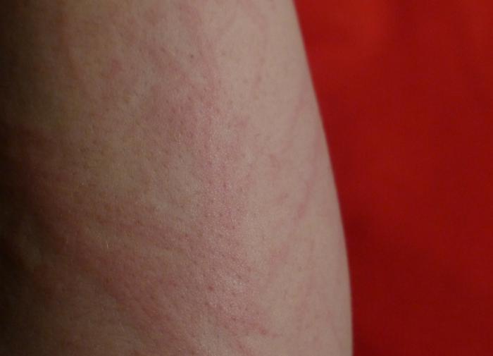 Иммунолог рассказала о первой помощи при внезапной аллергии