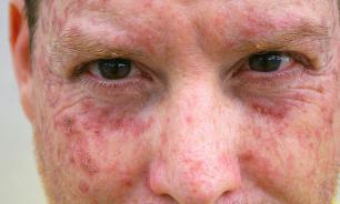 Как не допустить заболевания актиническим кератозом