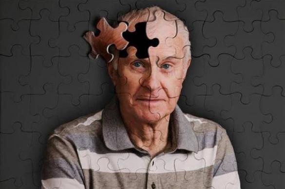 Ожирение может привести к преждевременному старению мозга