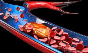 Тромб в легких - самое опасное состояние для жизни человека
