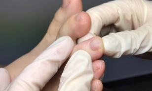 Пульс-терапия от грибков
