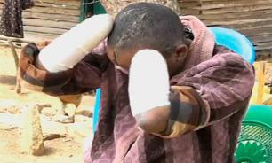 В Кении муж отрубил руки и жестоко избил жену за бесплодие