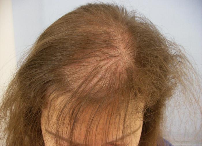 Финские специалисты выяснили, как остановить выпадение волос