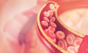 Народные средства для чистки сосудов от холестерина