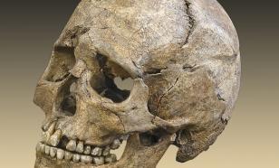 В Крыму обнаружили череп эпохи бронзы со следами трепанации