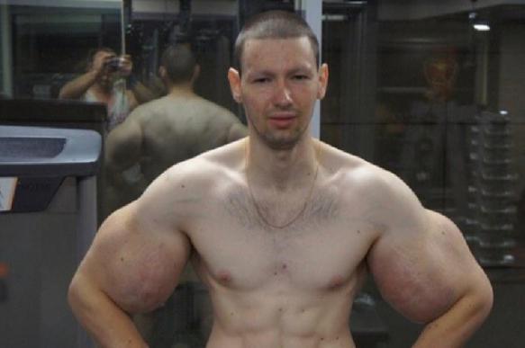 """Кириллу """"Руки-базуки"""" Терешину удалили синтол из мышц"""