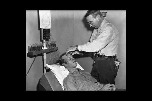 Трепанация черепа против мигрени, кровопускание и другие дикие способы лечения