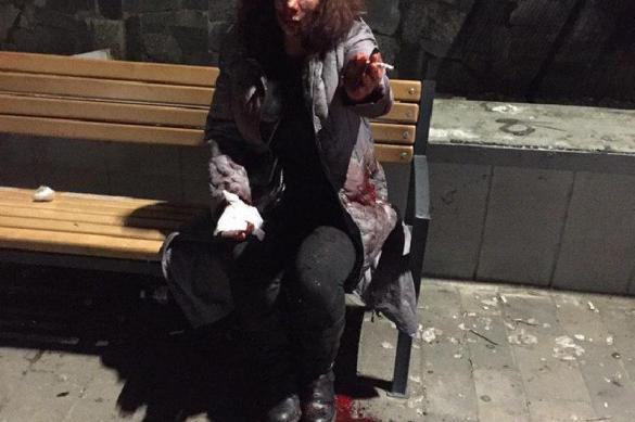 Сломан нос и выбиты зубы: в Киеве женщину избили из-за русского языка