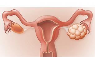 Лекарства от синдрома поликистозных яичников не существует