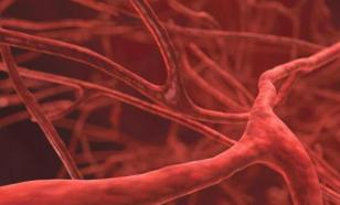 Медики назвали основные симптомы образования тромбов