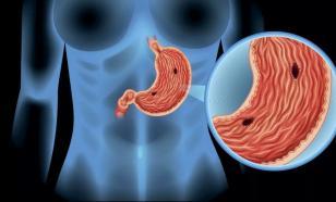 Причины и профилактика язвы желудка