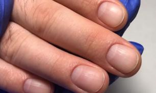 Рак легких можно определить по рукам