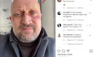 Куценко со следами насилия на лице поздравил всех с днём оптимиста