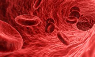 Кардиолог перечислил способы избежать тромбоза